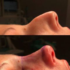 Rinoplastia - Clínica Decorps