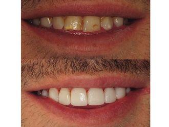 Carillas dentales - 494663