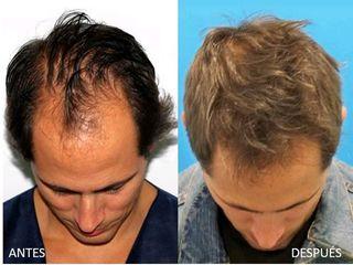 Antes y después Cirugía capilar