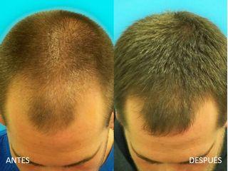 Antes y después tratamientos capilares