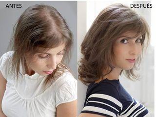 Antes y después Sistemas de integración Capilar Hair&Hair