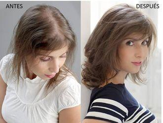 Alopecia-497835