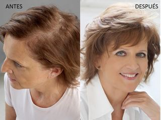 Antes y después Sistemas de cabello natural Hair & Hair