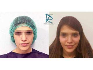 Antes y después Aumento de pómulos - Dr. Marco Romeo