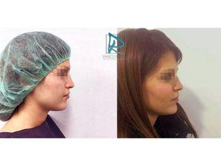 Antes y después Aumento de pómulos
