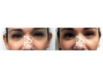 Cirugía estética-643181