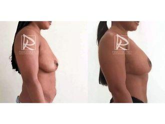 Liposucción-643230