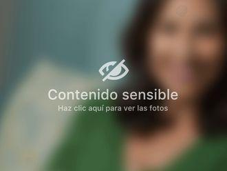 Abdominoplastia - 643239