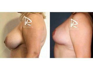 Reducción de mamas