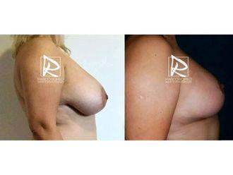 Reducción senos-643313
