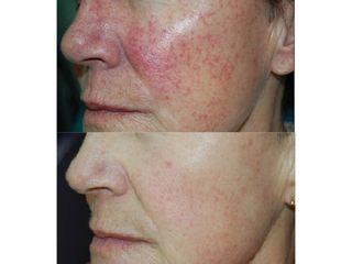 Antes y después Tratamiento de láser vascular para la cuperosis