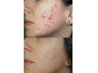 Antes y después Tratamiento del acné