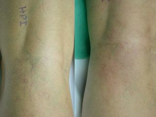 Antes y después Varículas en hueco popliteo antes y después de tratamiento