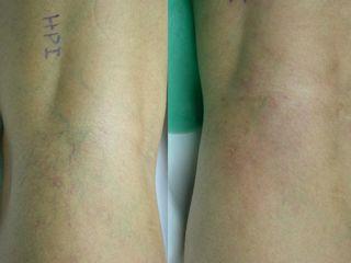 Varículas en hueco popliteo antes y después de tratamiento
