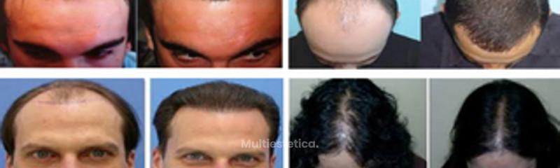 Microinjertos Antes y después