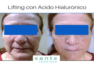 Antes y después Lifting con ácido hialurónico