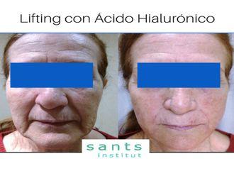 Medicina estética-613333