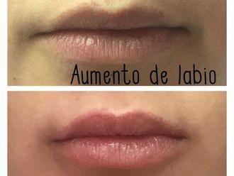 Aumento labios - 582693