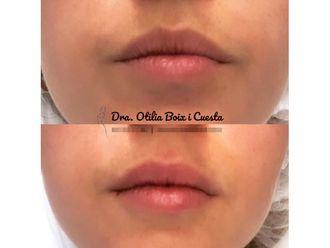 Aumento labios - 646278