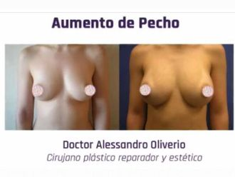 Aumento senos - 628392