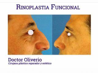 Antes y después RINOPLASTIA FUNCIONAL