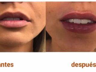 Antes y después aumento de labio