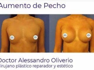 AUMENTO DE PECHO