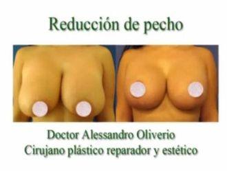 Reducción senos - 628897