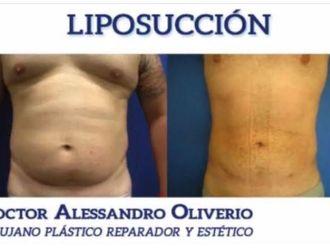 Liposucción - 628898