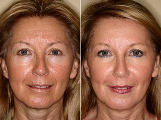 Antes y después Facelift