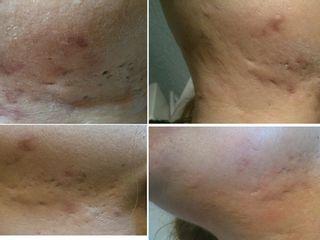 Antes y después Tratamiento de cicatrices
