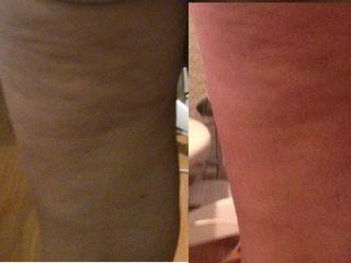 Antes y después Pierna CBX retensado