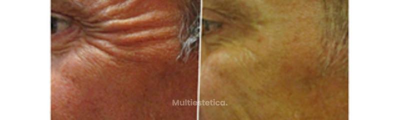 Botox para hombre. Antes / después
