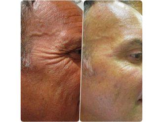 Medicina estética-595512