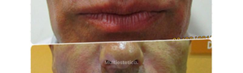 Antes - después. Mejora surcos con ácido hialurónico