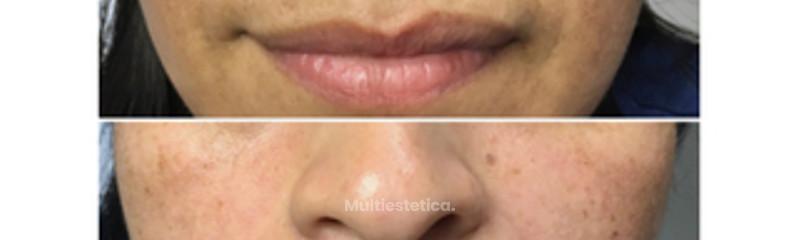 antes - después ácido hialurónico