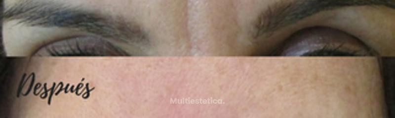 Antes- Después