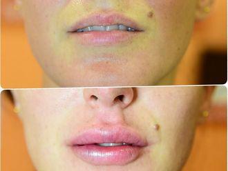 Aumento labios - 631438