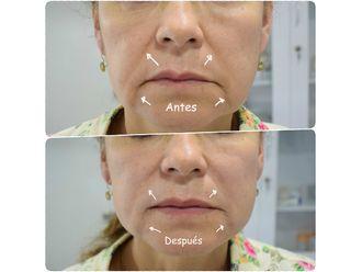 Rejuvenecimiento facial-634875