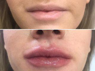 Antes y después Ácido Hialurónico  labios