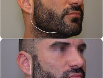 Rellenos faciales-645316