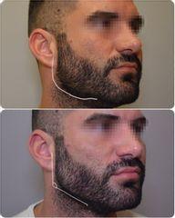 Antes y después Masculinizacion