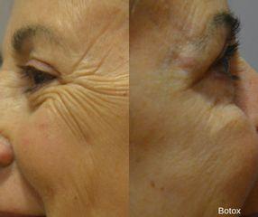 Antes y después Eliminar arrugas - Clínicas DH
