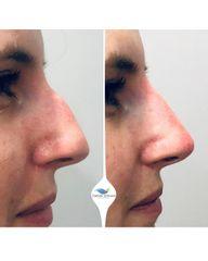 Antes y después Rinomodelación - Clínicas DH