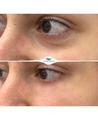 Antes y después Eliminación de ojeras - Clínicas DH