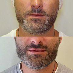 Aumento de labios - Clínicas DH