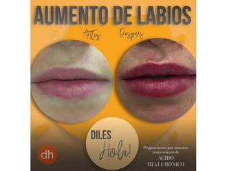 Aumento labios-741773