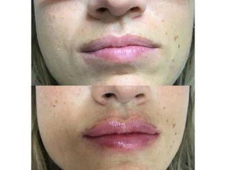 Aumento labios-741782