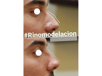 Rinomodelación-741789