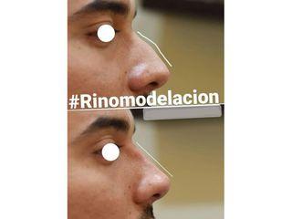 Rinomodelación - Clínicas DH